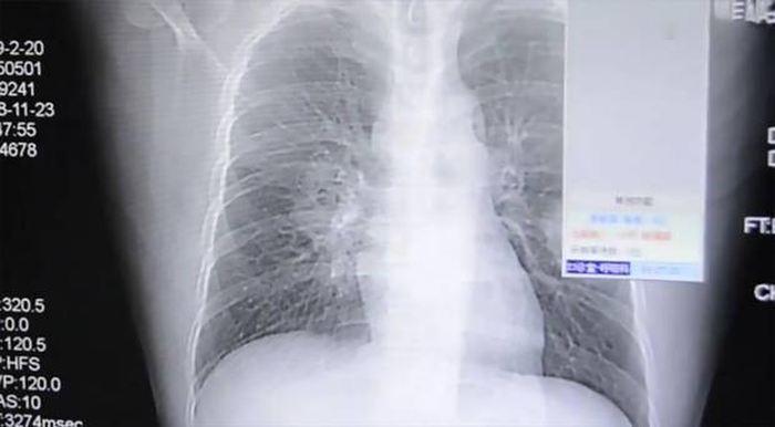 Une radio des poumons de Peng - Crédit : AsiaWire