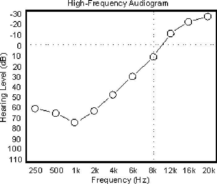 Un exemple d'audiogramme d'une personne souffrant de la perte auditive en pente inversée