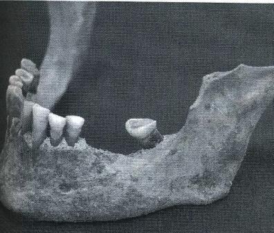 Figure 8 mandibule