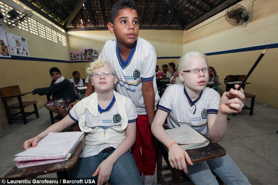 My Albino Children Black Brazilian Family Have Three White Children