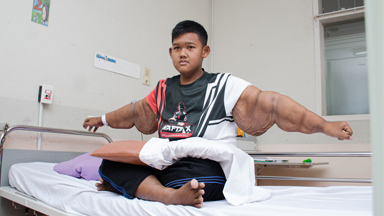 'World's Heaviest Kid' Has Saggy Skin Surgery