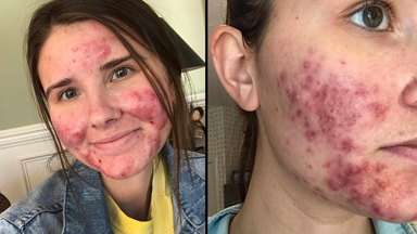 Sharing My Severe Acne Journey