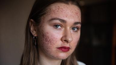 I'm Finally Happy To Show My Acne On Instagram