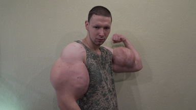Russian 'Hulk' Injects Dangerous Chemicals To Look BIGGER