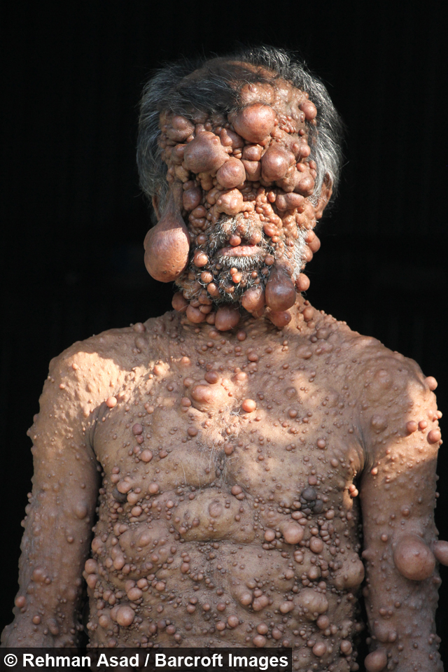 Dad S Entire Body Is Covered In Tumours