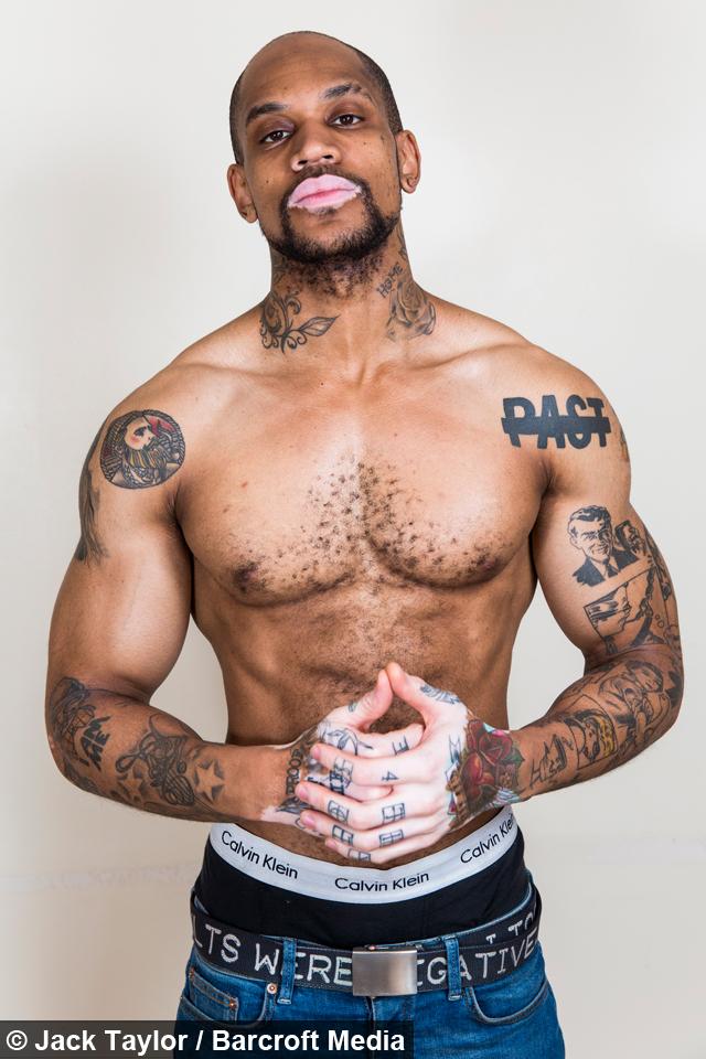 Vitiligo Hunk Aspiring Model Embraces His Skin Condition
