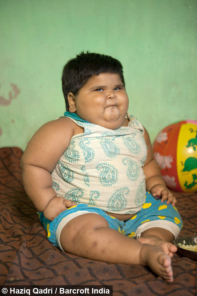 Overweight Toddler