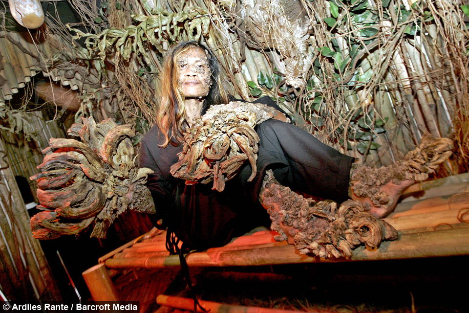 Tree Man' Dede Koswara dies aged 45 after long battle with