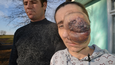 Mum with tumour covering her face is hoping for lifechanging surgery