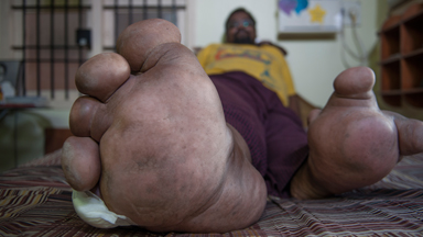 My 220lbs Leg: Rare Genetic Mutation Leaves Man A Prisoner In His Own Home