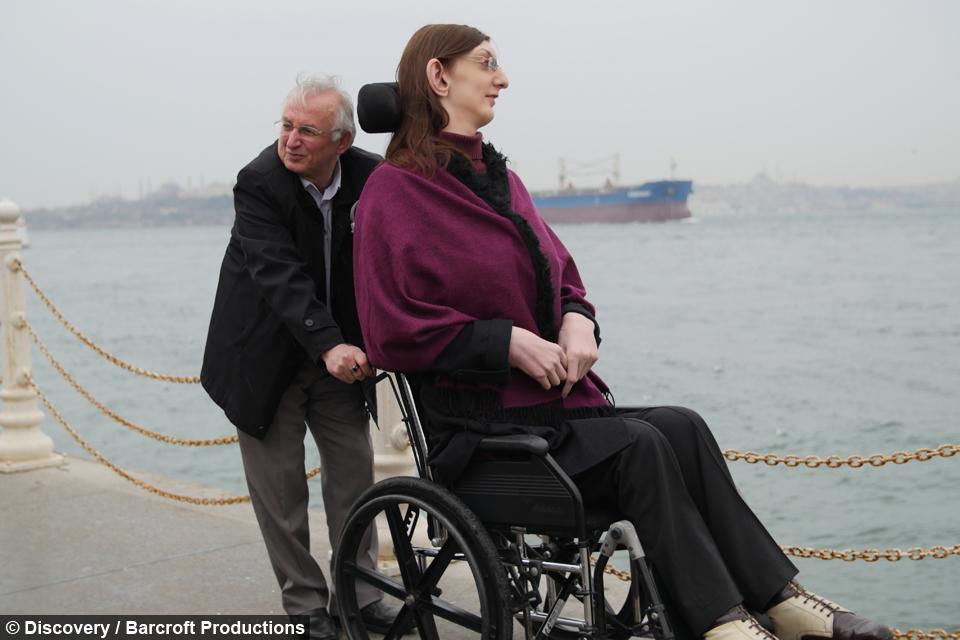too tall to walk: world's tallest girl bound to wheelchair, Skeleton