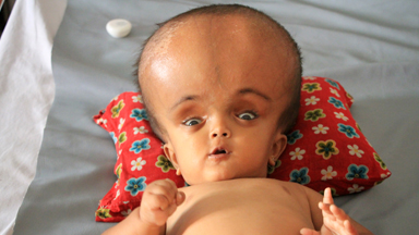 Baby With Swollen Head Hopes For Life-Saving Surgery