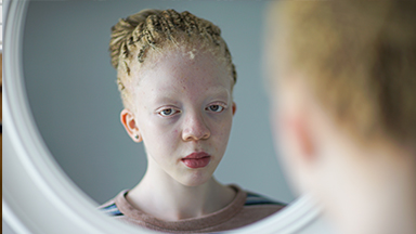 I'm Black, Even With Albinism