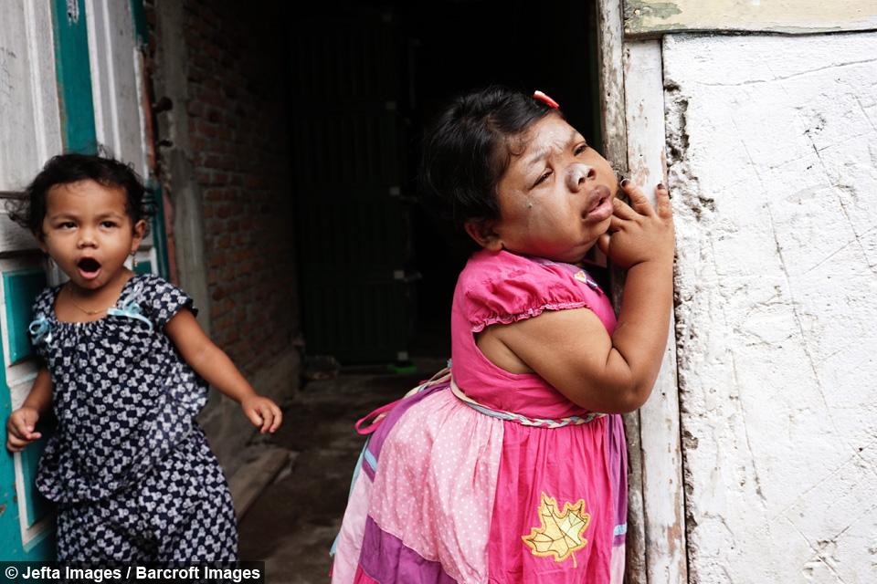 Sari (kanan) sudah berusia 24 tahun tapi secara fisik dan kemampuannya masih seperti batita.