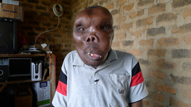 'Uganda's Most Unusual Looking Man' finally receives a diagnosis