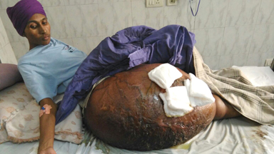 New Delhi Father Has Enormous 55kg Tumour Removed