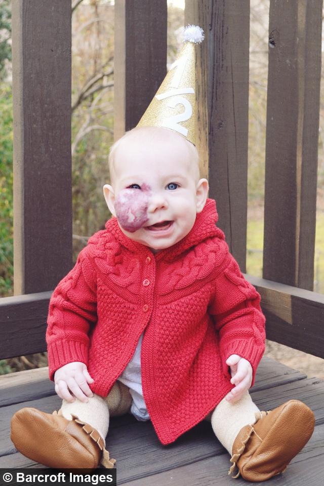 The big picture: Mum won't let birthmark define her ...