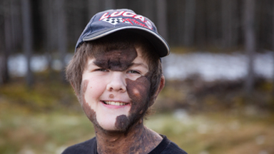 Boy With Giant Mole Beats The Bullies