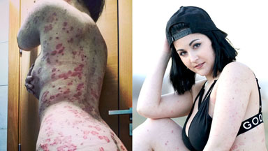 My Psoriasis Doesn't Stop Me Feeling Beautiful