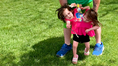 Miracle Conjoined Twins Learning To Walk
