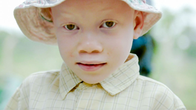 Born Too White: Albinism In Africa