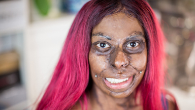 Mum Embraces Her Scars After Kerosene Explosion