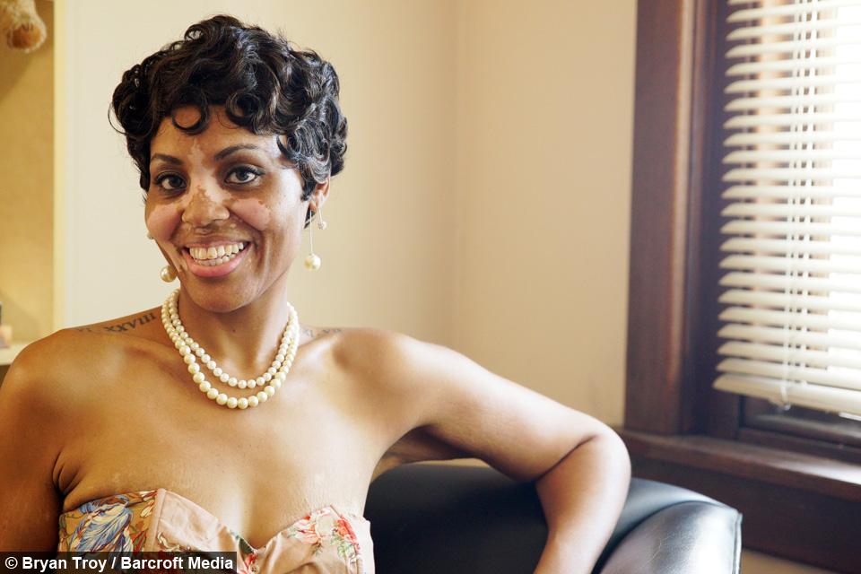 Black And White Skin Body Positive Mom Owns Her Vitiligo Condition