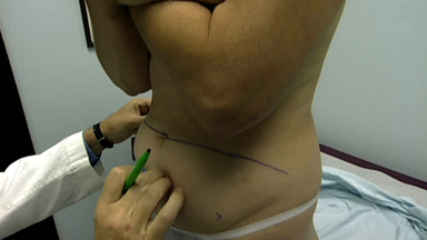 Body Image - Fixing The Body: Reconstructive Surgery