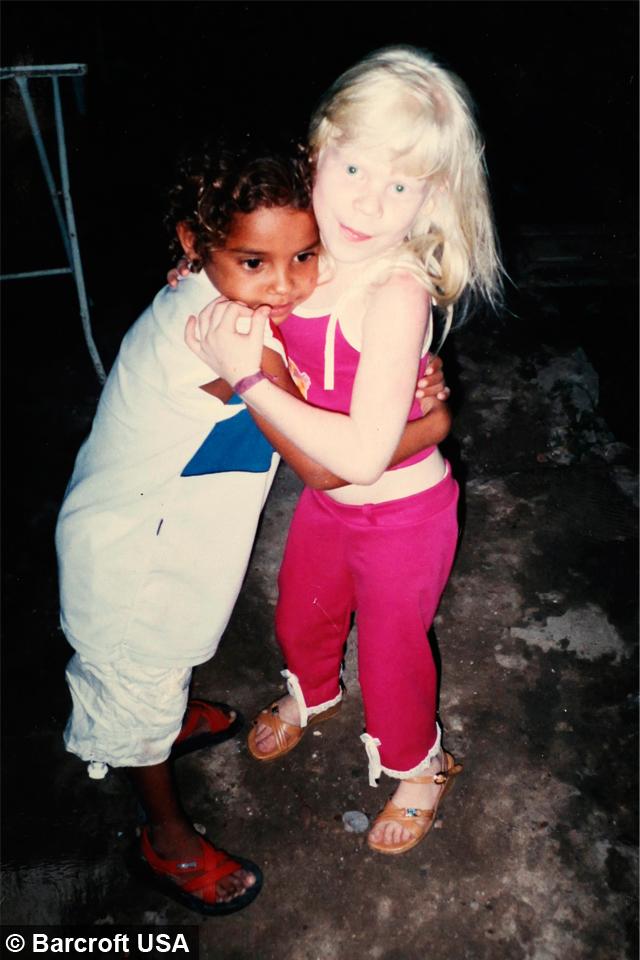 My Albino Children Black Brazilian Family Have Three