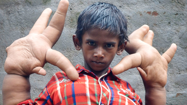 The Boy With The World's Biggest Hands