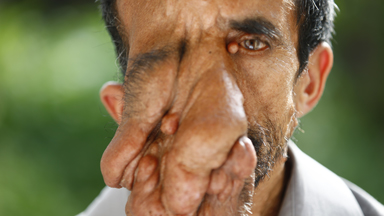 Nepalese man with facial tumour seeks life-changing treatment