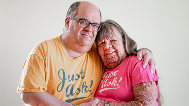 Husband & Wife With Thousands Of Tumours