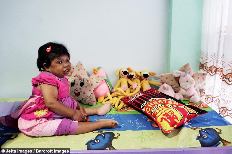 Sari, wanita berusia 24 tahun yang terkena sindrom turner.