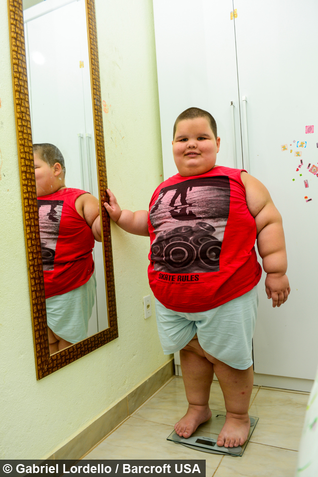 12 Stone Five Year Old Eating Himself To Death