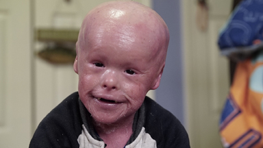 Harlequin Ichthyosis: The Boy Whose Skin Grows Too Fast