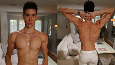 Human Ken Doll Spends $21,000 On Back Implants