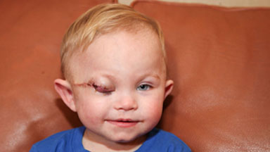 Brave Toddler Colby Has Sight-Saving Surgery On Tumour