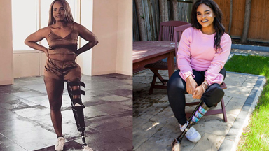 Empowered Teen Proud of Prosthetic Leg