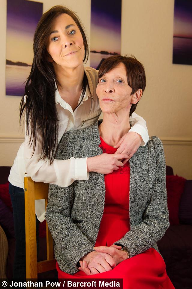 Cutis Laxa Zara Like mother, like daughter: £50k facelift gives mum ...