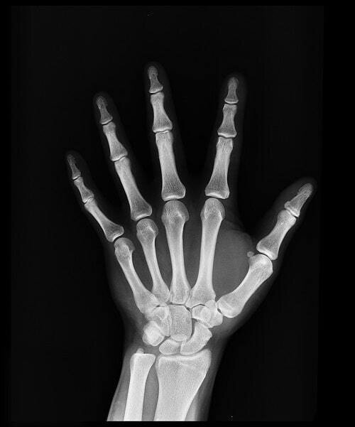 AI project offers fracture diagnosis solutions