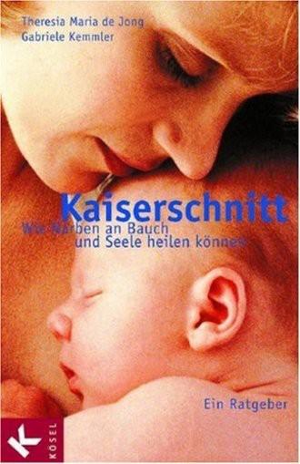 Kaiserschnitt; Wie Narben An Bauch Und Seele Heilen Können. Ein Ratgeber