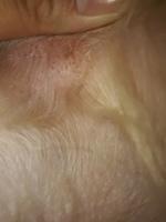 Mitzy, mi perro cruce de bichon maltés hembra, tiene heridas, caspa y erupciones en la piel