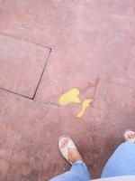 Vómito amarillo en perros, Dálmata