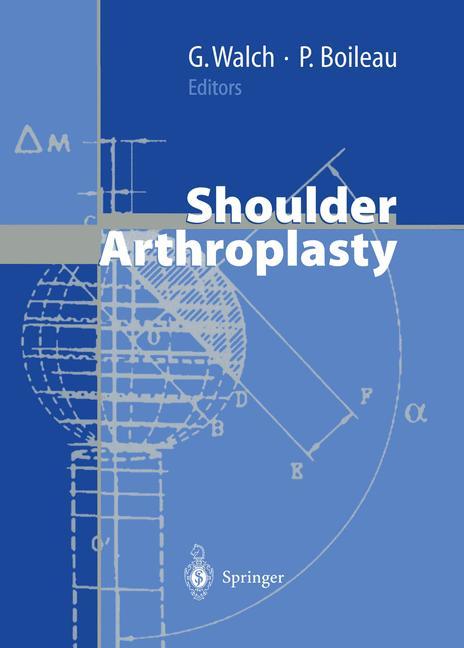 Cover of 'Shoulder Arthroplasty'