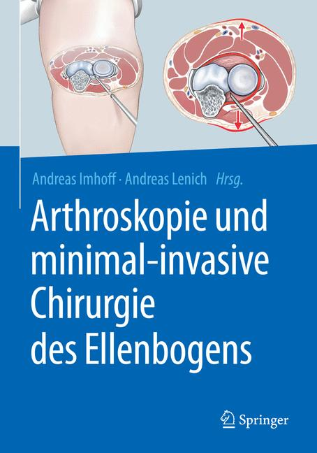Cover of 'Arthroskopie und minimal-invasive Chirurgie des Ellenbogens'