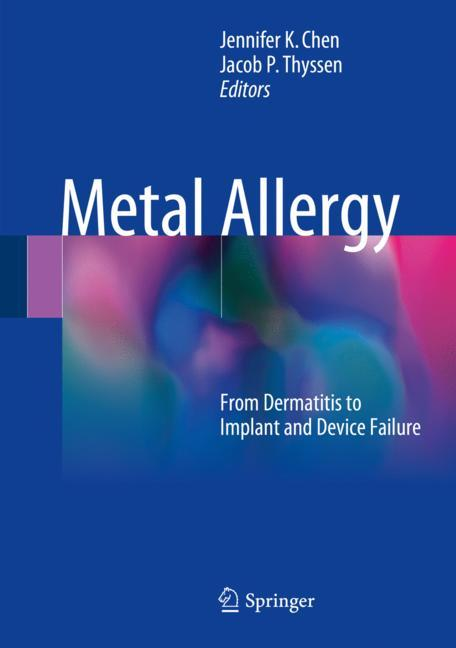 Cover of 'Metal Allergy'