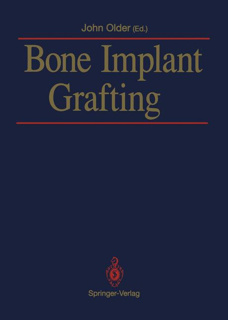 Cover of 'Bone Implant Grafting'