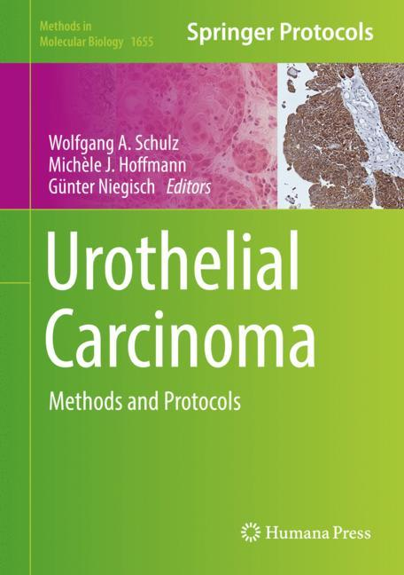 Cover of 'Urothelial Carcinoma'