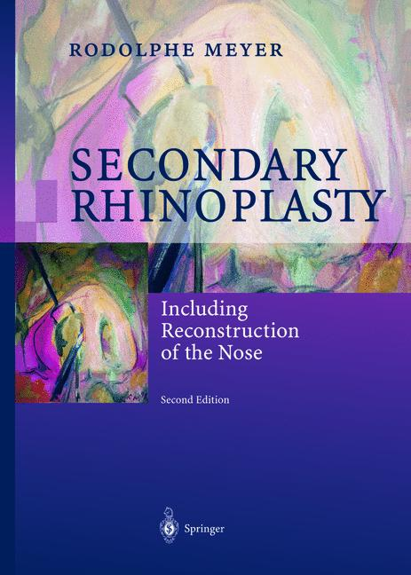 Cover of 'Secondary rhinoplasty : including reconstruction of the nose'