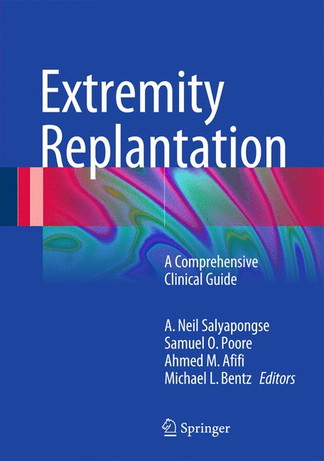 Cover of 'Extremity Replantation'